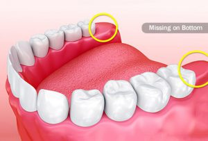 from https://www.webmd.com/oral-health/ss/slideshow-wisdom-teeth