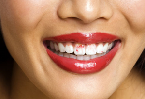 from https://www.webmd.com/oral-health/ss/slideshow-dry-mouth