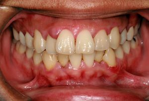 from https://www.webmd.com/oral-health/ss/slideshow-breath-symptoms