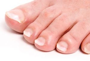 from https://www.webmd.com/diabetes/ss/slideshow-what-your-feet-say