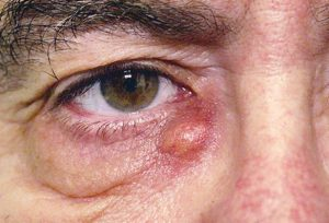 from https://www.webmd.com/eye-health/ss/slideshow-dry-eyes