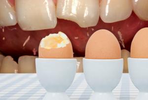from https://www.webmd.com/oral-health/healthy-teeth-17/slideshow-enamel-erosion