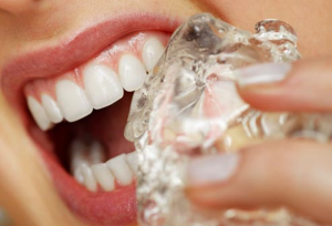 歯をダメにする19の習慣