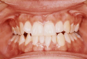 from https://www.webmd.com/oral-health/ss/slideshow-teeth-wreckers