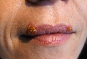 from https://www.webmd.com/skin-problems-and-treatments/ss/slideshow-cold-sores