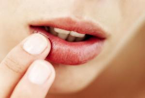 口唇ヘルペスの治療と予防