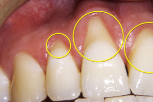from https://www.webmd.com/oral-health/ss/conditions-teeth-hurt