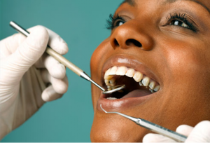 from https://www.webmd.com/oral-health/ss/slideshow-sensitive-teeth-causes