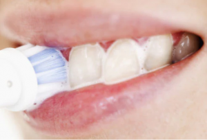 from https://www.webmd.com/oral-health/ss/slideshow-10-secrets-to-whiter-teeth