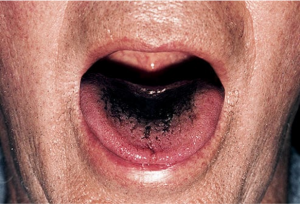 from https://www.webmd.com/oral-health/ss/slideshow-tongue-your-health