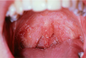 from https://www.webmd.com/oral-health/ss/slideshow-teeth-gums