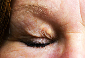 from https://www.webmd.com/skin-problems-and-treatments/ss/slideshow-face-your-health